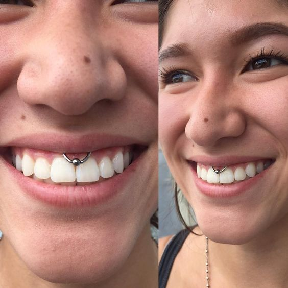 a CBD ring used for smiley piercing