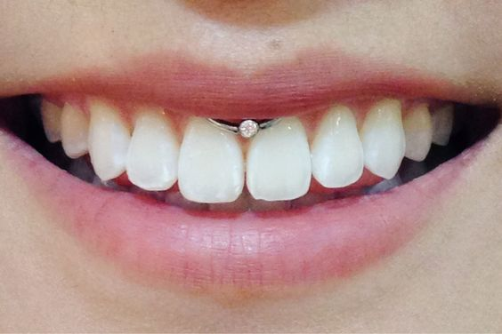 beautiful smiley piercing