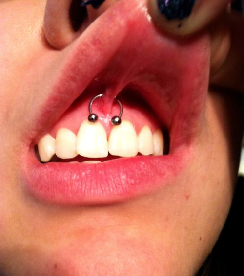 clear smiley pircing