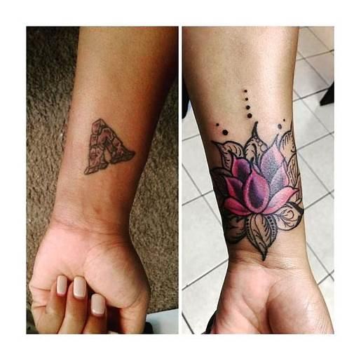 Mandala Cover Up Tattoo 10