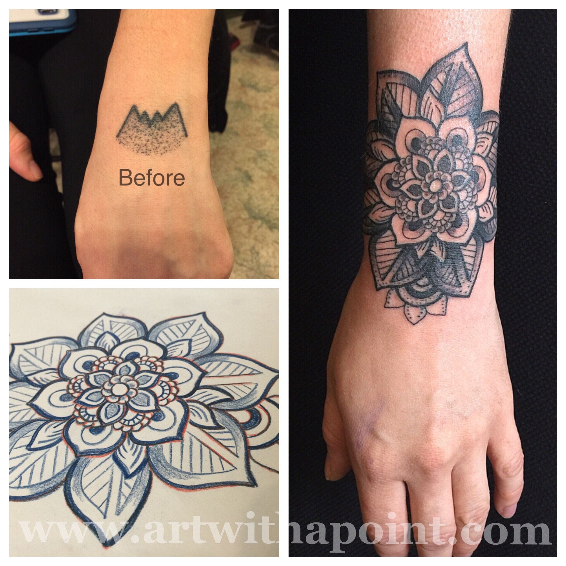 Mandala Cover Up Tattoo 3
