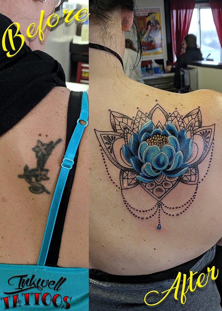 Mandala Cover Up Tattoo 8