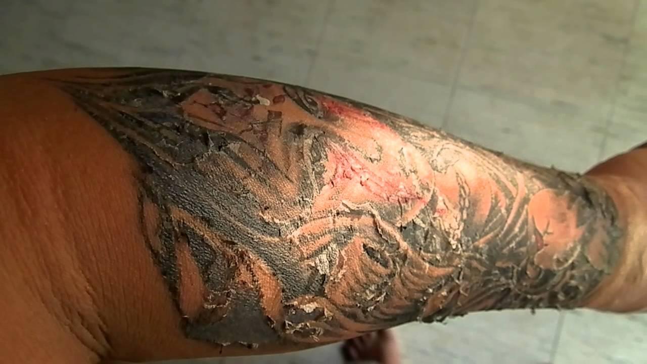 peeling tattoo