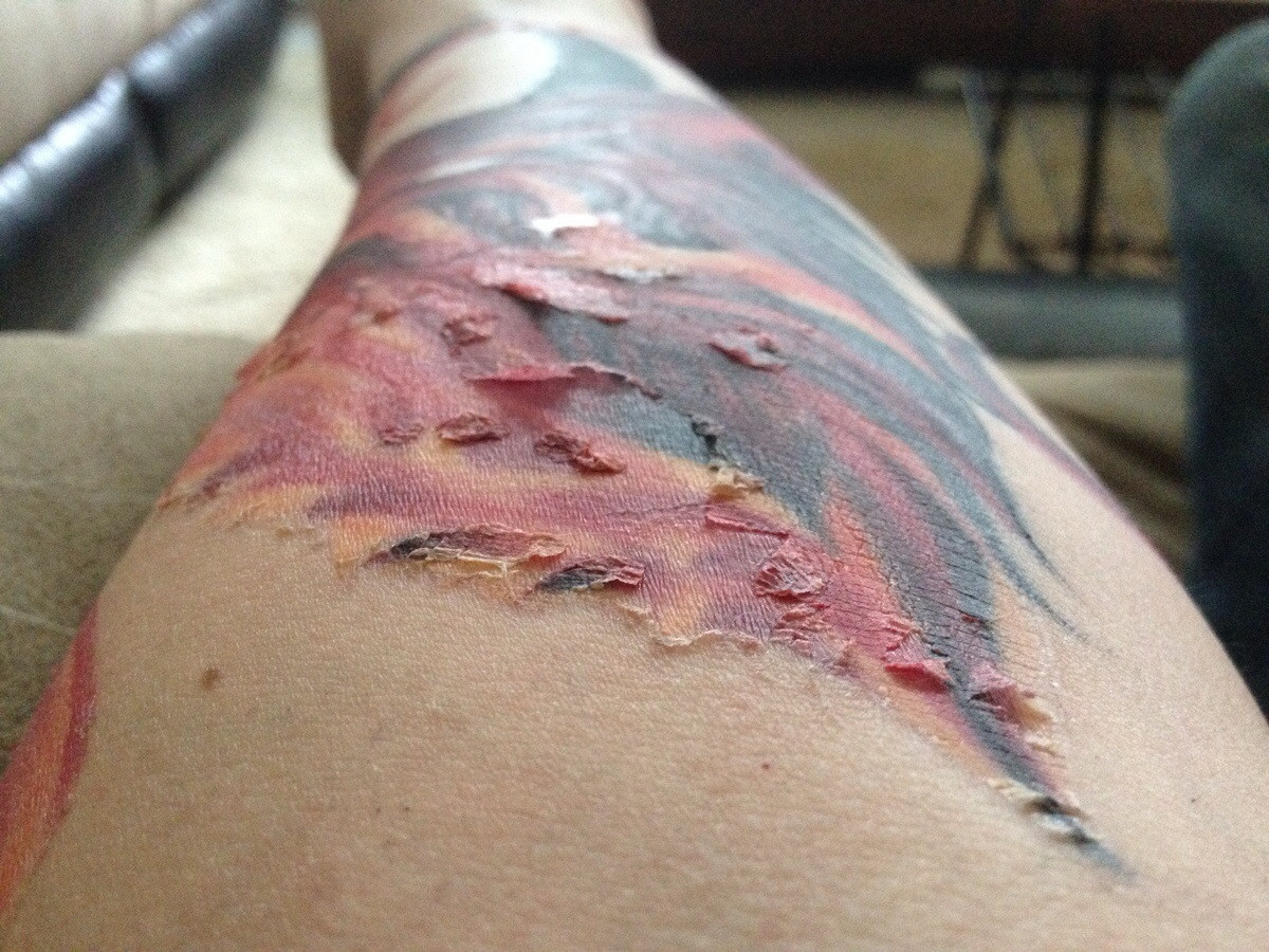 tattoo peeling 3